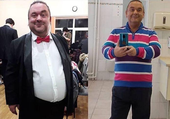 Артист «Кривого зеркала» сделал операцию ради похудения